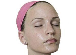 Manfaat Kefir Charcoal Untuk Wajah